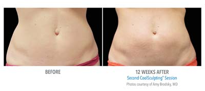 Pensacola CoolSculpting-12wk-2nd-HiRes