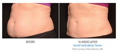 Pensacola CoolSculpting 16 weeks