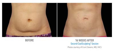 Pensacola CoolSculpting 2Set-16wk-HiRes