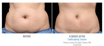 Pensacola CoolSculpting 2Set-8wk-HiRes-1