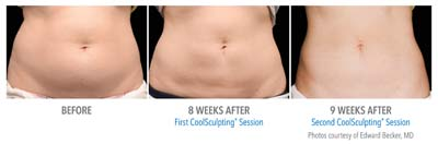 Pensacola CoolSculpting-AB-3Set-17wk-HiRes