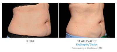 Pensacola CoolSculpting F-2Set-11wk-3Q-right