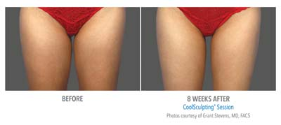 Pensacola CoolSculpting