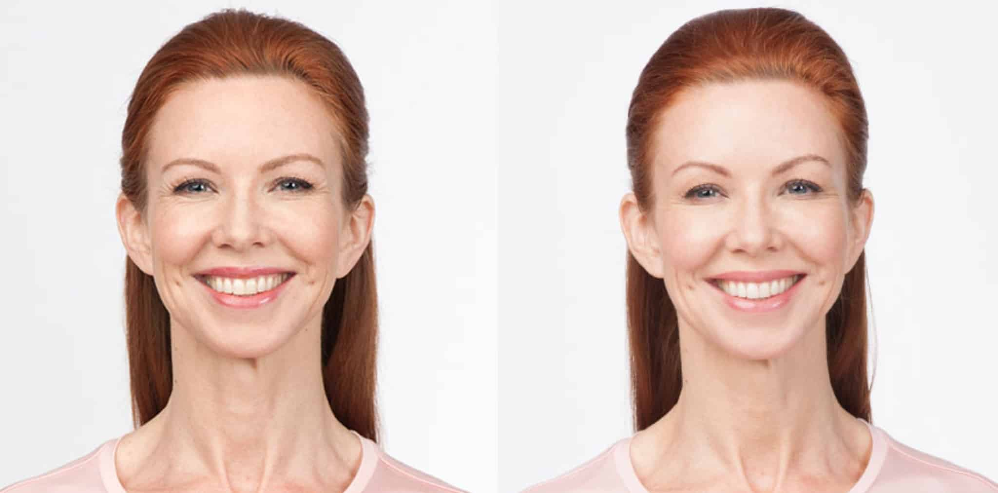botox results (4)